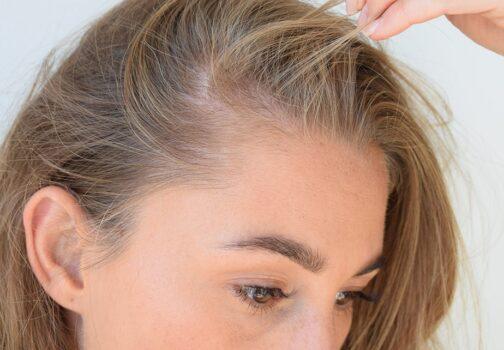Serum til håret: Sådan får du længere & fyldere hår, på kun 3 uger